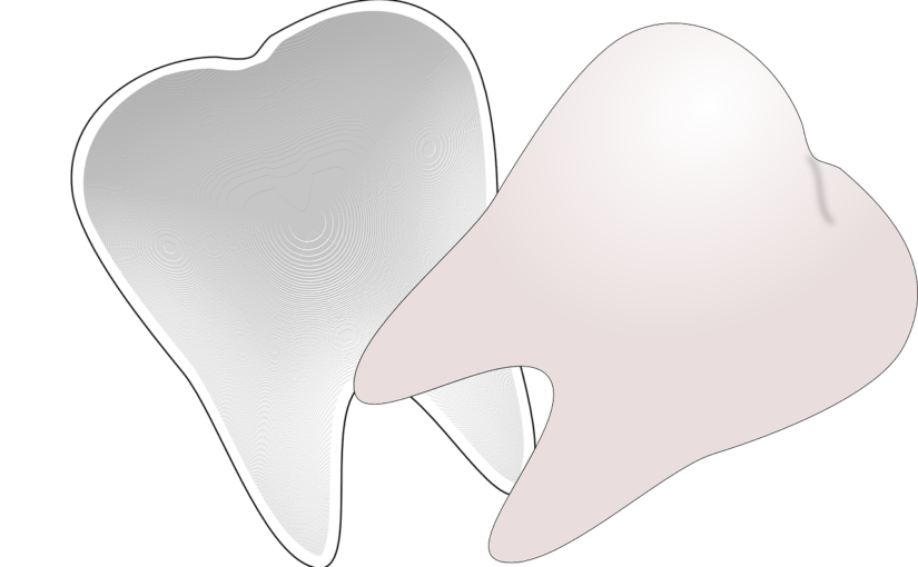 Śliczne zdrowe zęby dodatkowo doskonały cudny uśmieszek to powód do zadowolenia.